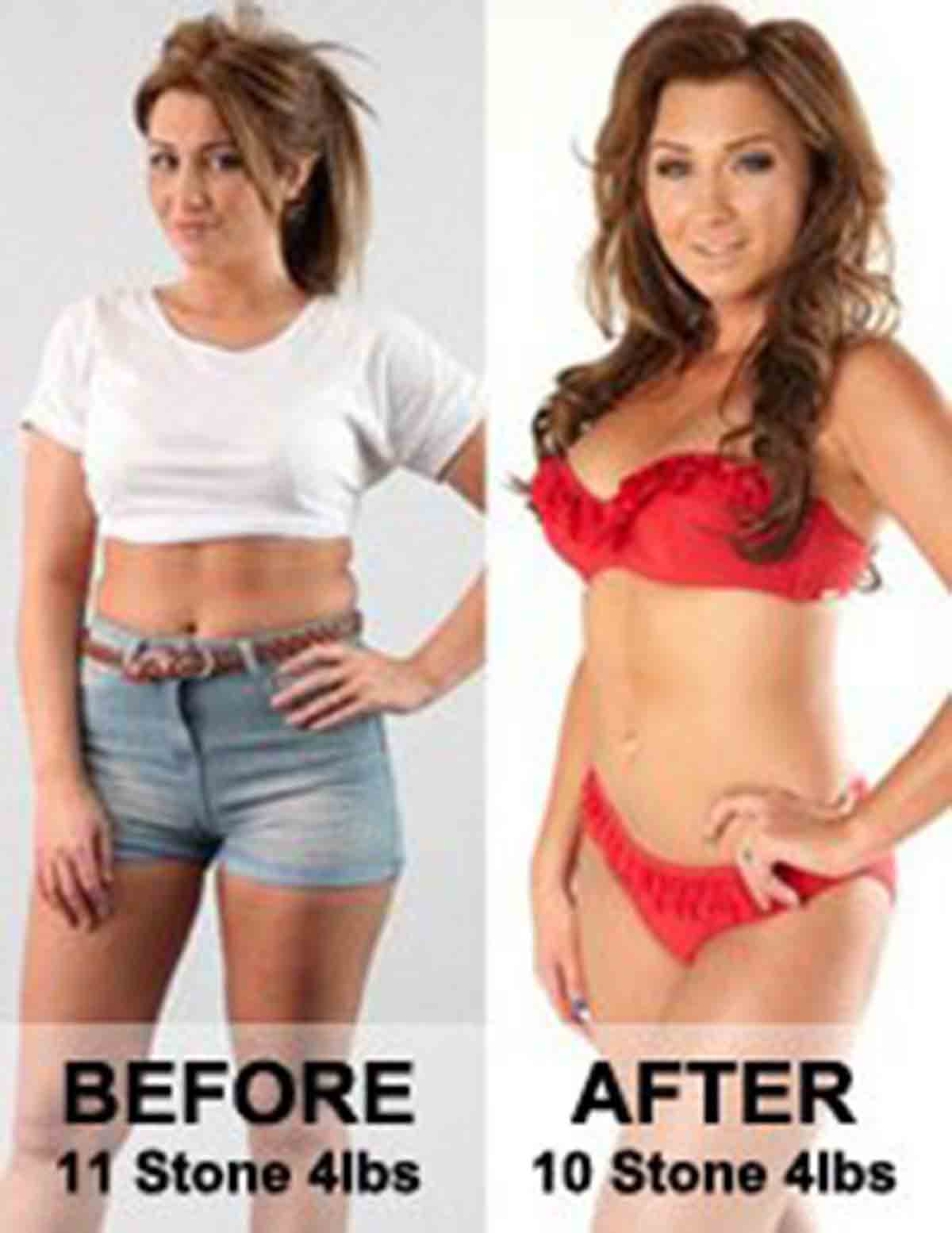 Lauren Goodger Before and After