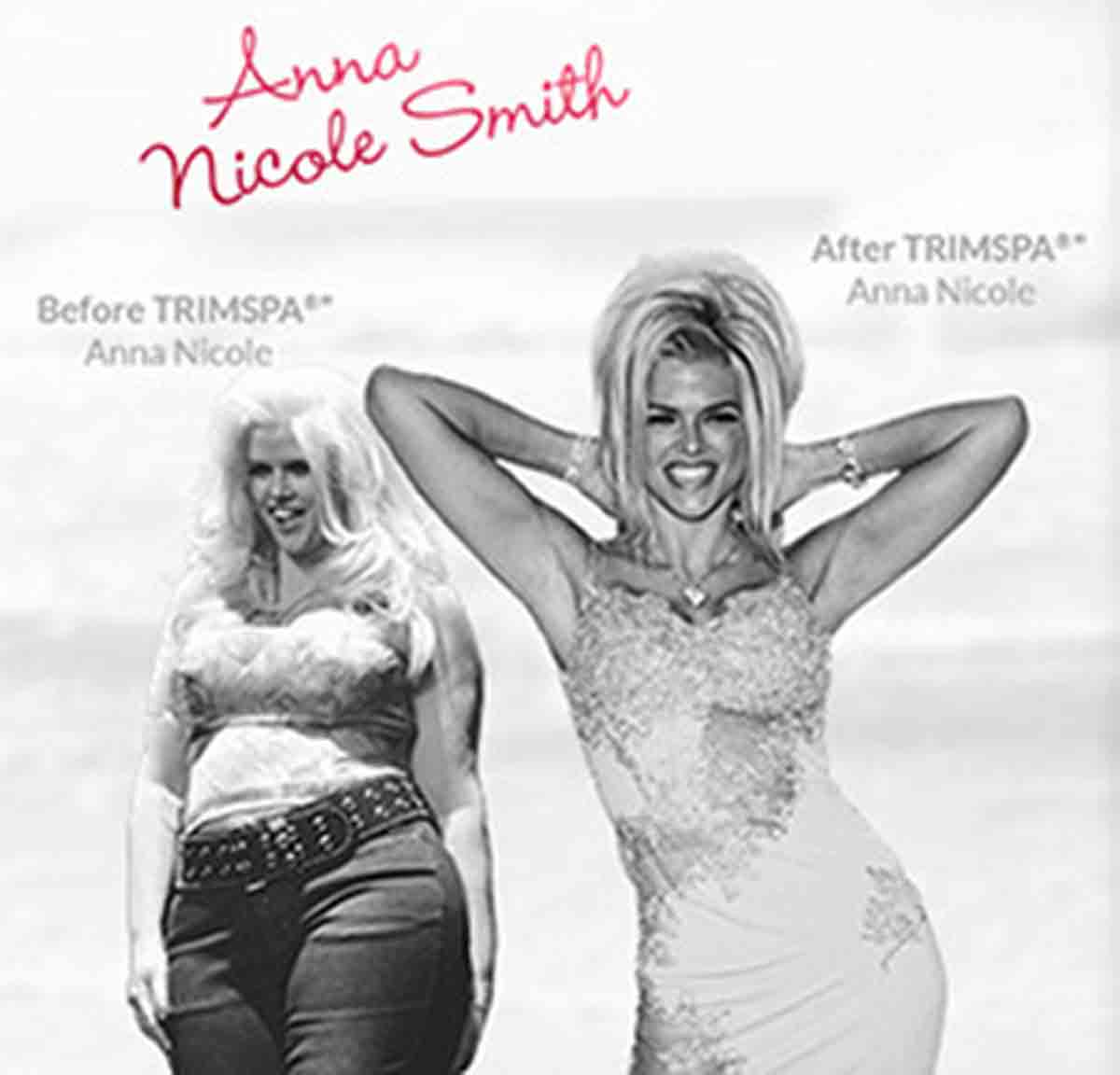 Trimspa X32 Anna Nicole Smith